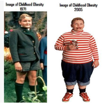 image of childhood obesity